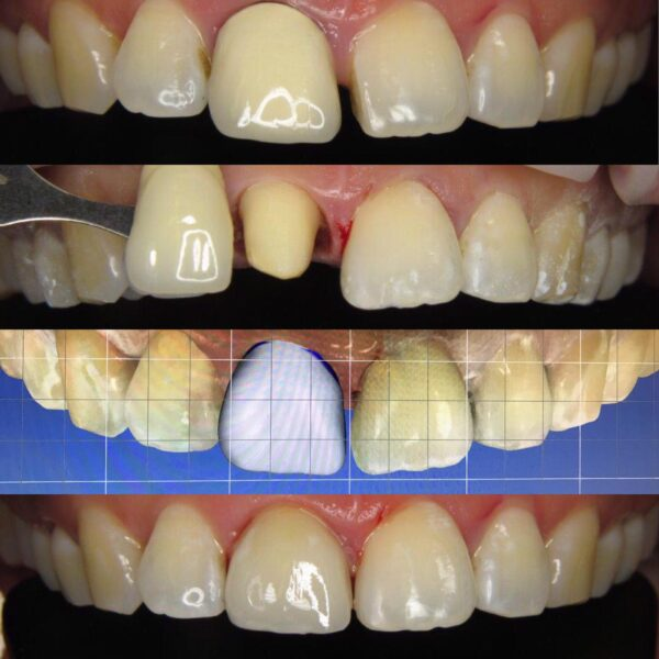 Tand esthetiek digitale tandheelkunde tandarts Oss